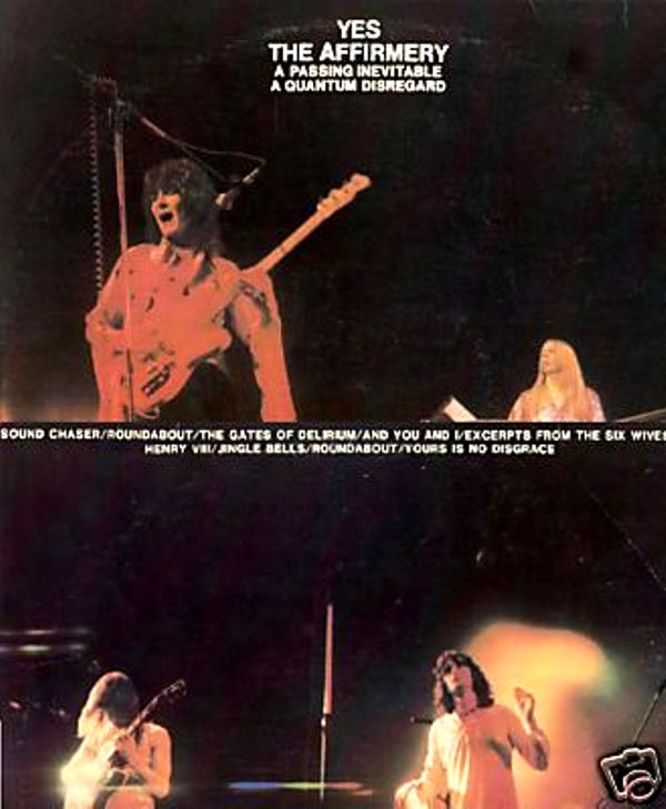 1981: YES  'THE AFFIRMERY' :Beacon Island (2/5)